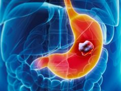 Imugene Limited IMU ASX first patient dosing HER-Vaxx gastric cancer study