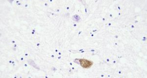 Patrys ASX PAB glioblastoma brain tumour cancer animal model PAT-DX1