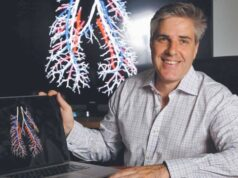 4DMedical ASX IPO 4DX lung imaging